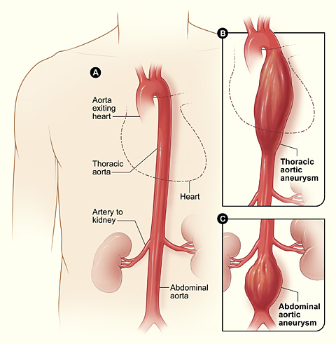 Aortic aneurysm - vascular medicine