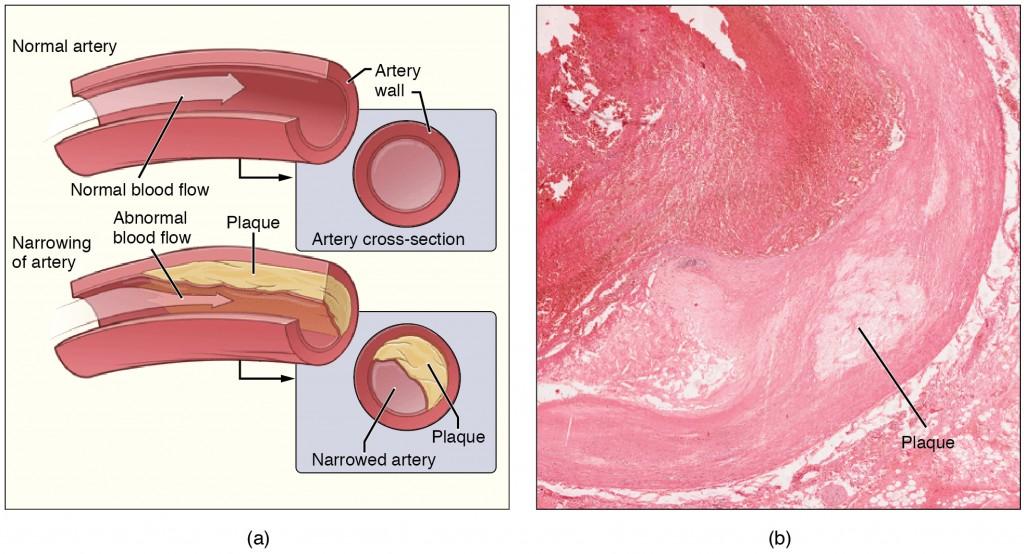 labeled diagram of Atherosclerose