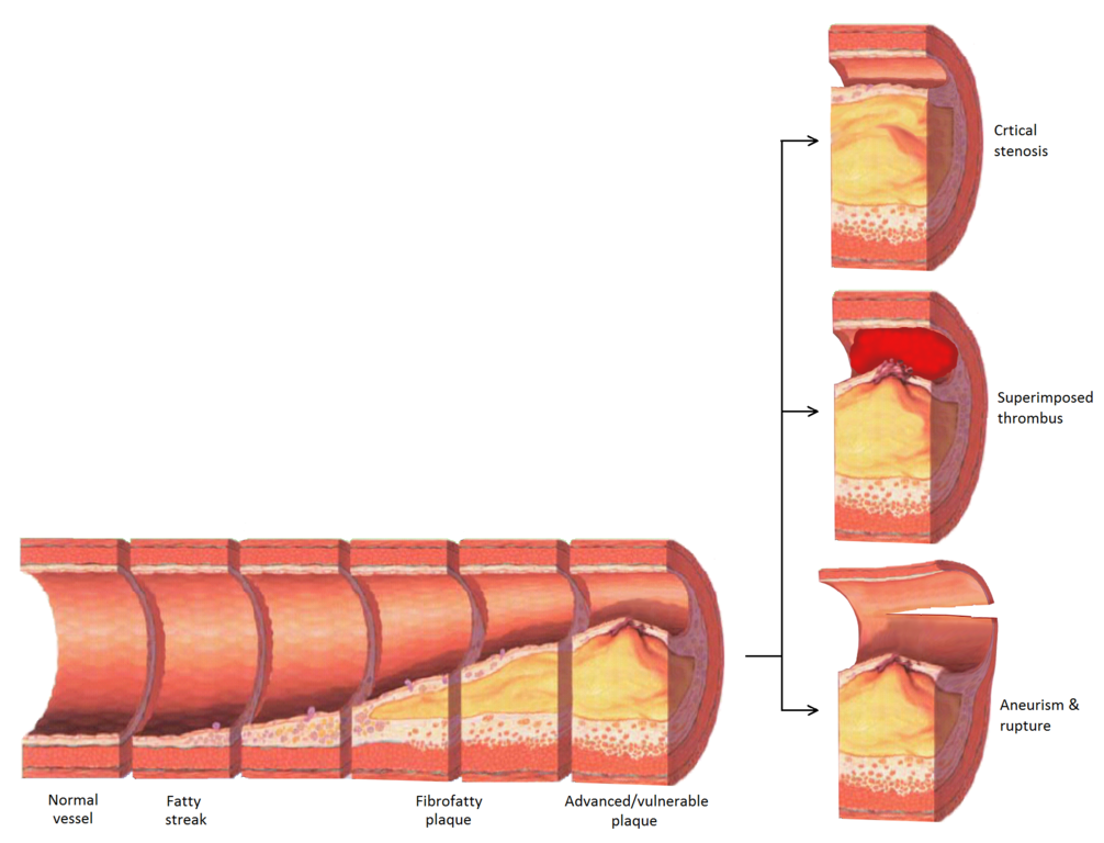 What is atherosclerosis disease