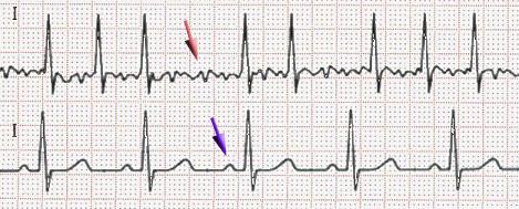 Atrial fibrillation (red arrow) and sinus rhythm (blue arrow)