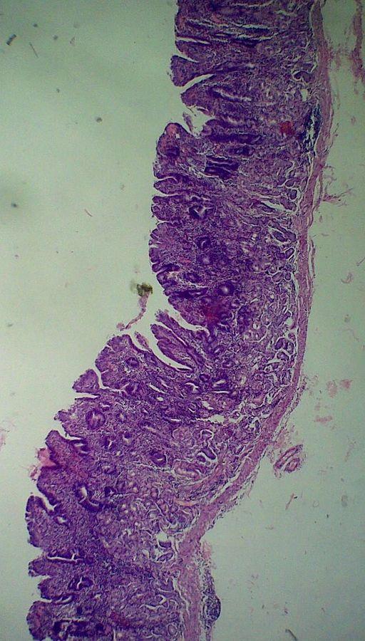 Gastritis Typ C Ernährung