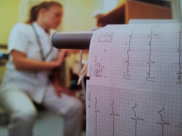 Aufzeichnung-Herzfrequenz-625x468