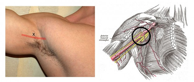 Left: puncture of the axillary block via the axillary artery. Right: the course of the artery and nerve, place of elimination