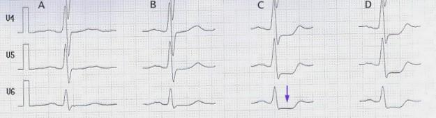 Belastungs EKG mit ST Senkung Pfeil ab 100 W Spalte C