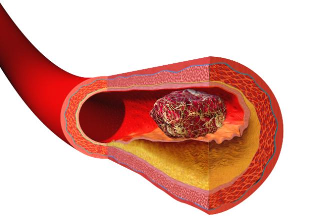 BloodClot-Hypercoagulability
