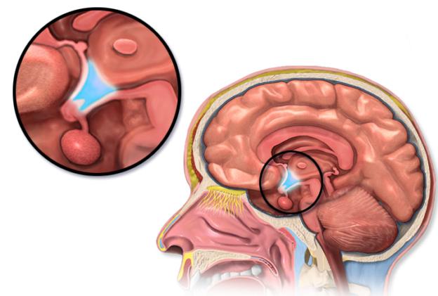 hypothalamus location