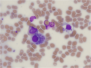 Bone marrow biopsy. Wright stain of bone marrow aspirate shows inclusions of Histoplasma capsulatum in white blood cells.