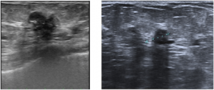 Breast cancer ultrasound images