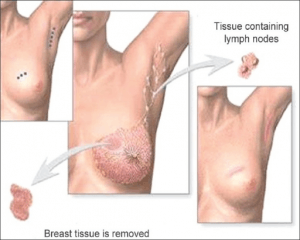 Breast conservation surgery