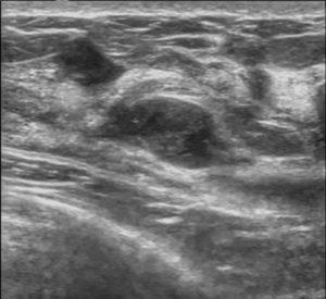 Breast-Fibroadenoma