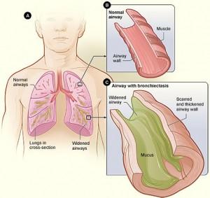 Bronchiectasis-NHLBI