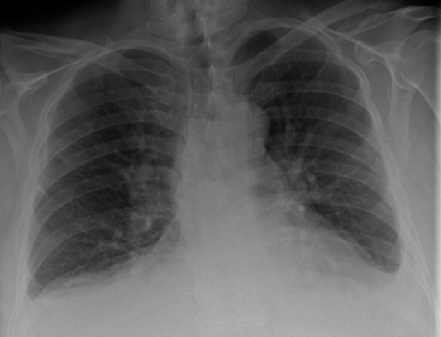 Congestive heart failure with small bilateral effusions x ray