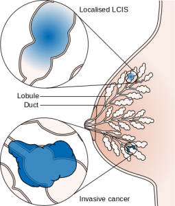 Diagram showing lobular carcinoma in situ