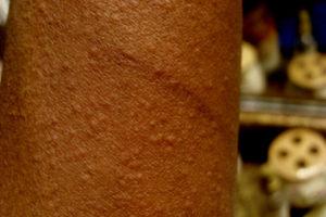 Cholinergic urticaria