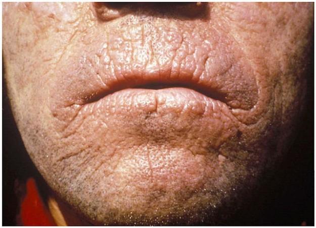 Chronic skin lesions of EPP