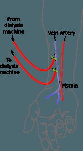 Cimino fistula