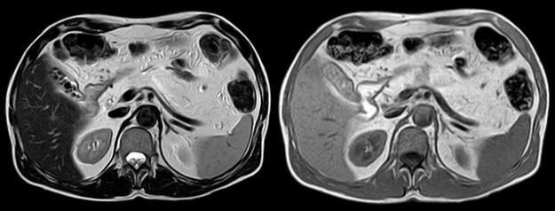 Complete lipomatous conversion of the pancreas
