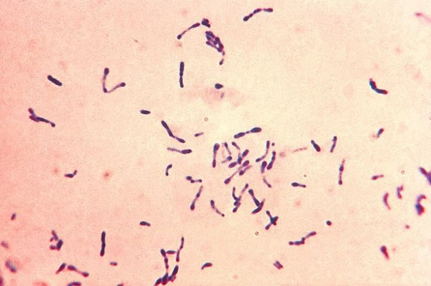 Corynebacterium diphtheriae Gram stain