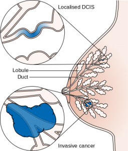 Diagram showing ductal carcinoma in situ