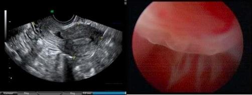 Uterine defect