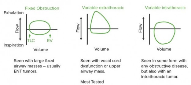 Detection of upper airway obstruction