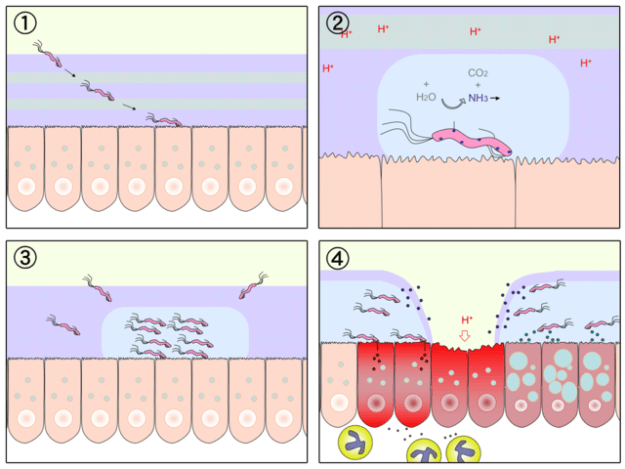 Diagram of gastric ulceration by H. pylori, with minimal annotation