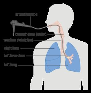 diagram showing a bronchoscopy