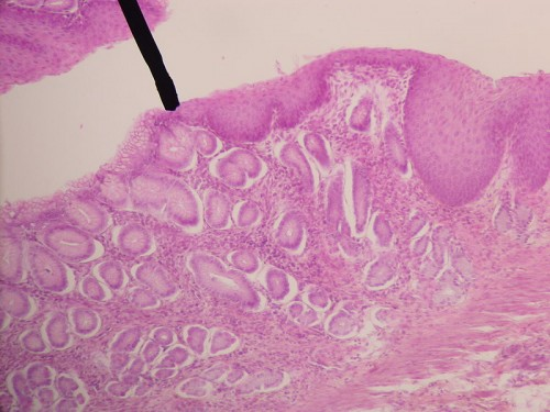 Digital camera shot of human Gastro-esophageal Junction through a microscope