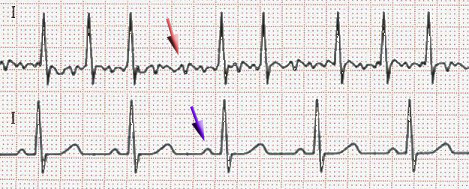 ECG of atrial fibrillation (top) and normal sinus rhythm (bottom)