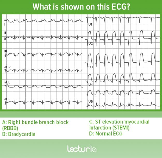 EKG_Quiz_2
