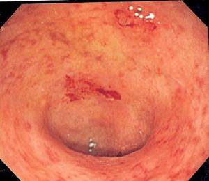 Endoscopic image of ulcerative colitis