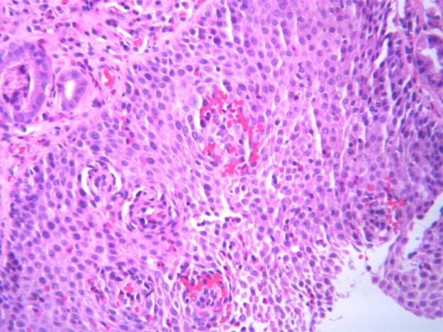 Eosinophilic oesophagitis, histologic features