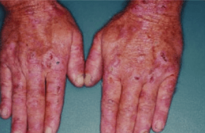 Erosions, crust, and blisters are evident on the hands of this patient with PCT