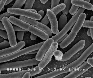 Escherichia Coli NIAID