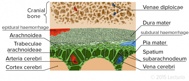 Extracerebral Bleedings