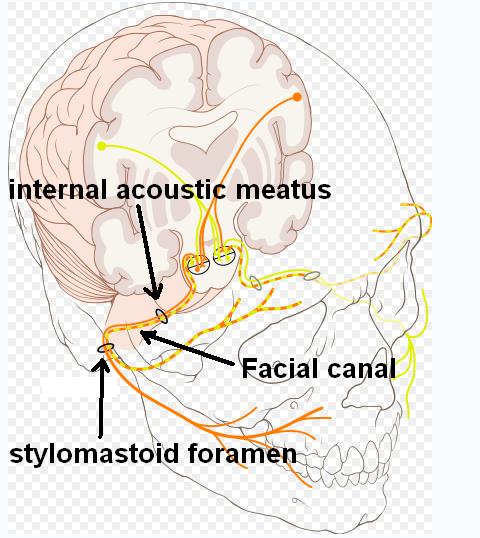 Facial canal