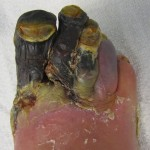Gangrene of the 1st to 4th toes of the right foot in person with diabetes
