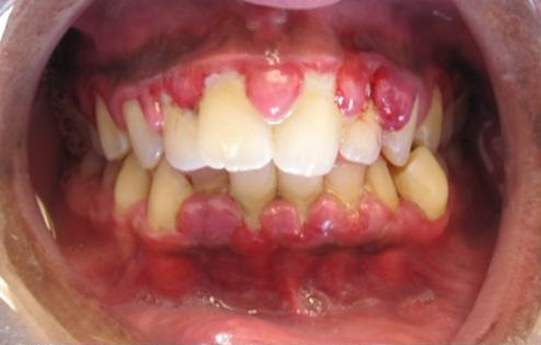 Gingivitis as seen on an open mouth