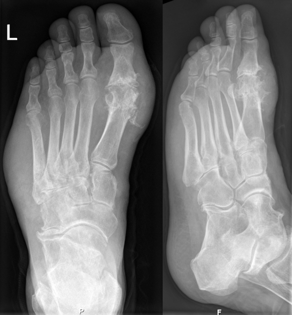 Gouty foot in an x-ray