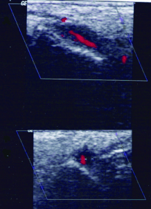 Halo sign in colour duplex sonography examination in a patient with giant cell arteritis