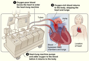heart-lung bypass