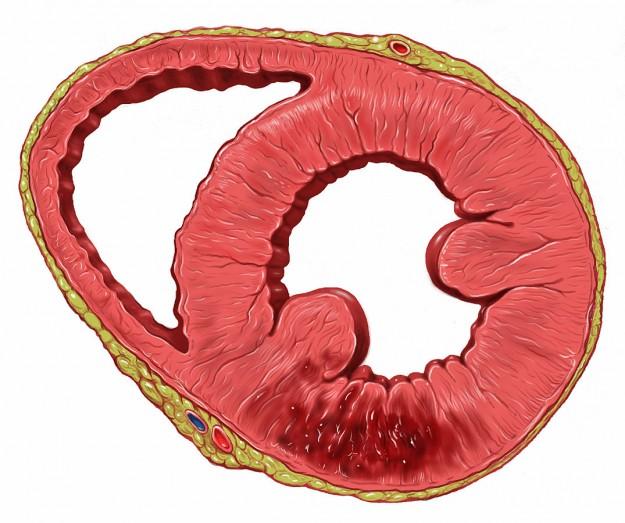Heart inferior wall infarct
