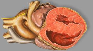 Congenital Heart Disease (CHD) – Online USMLE Prep Course