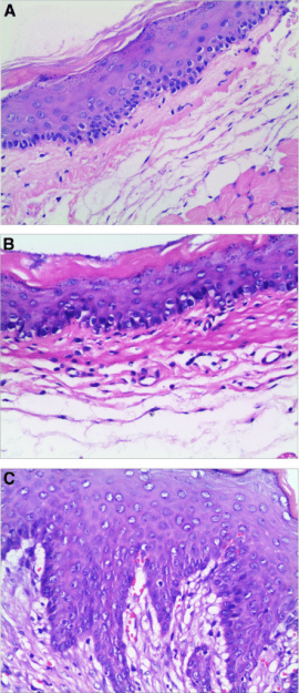 Histological assessment of the esophageal mucosa