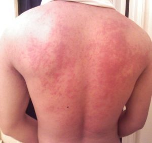 Hives on back
