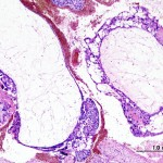 Hydatidiform mole complete type