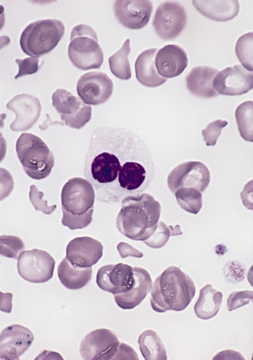 hypogranular_neutrophil_with_a_pseudo-pelger-huet_nucleus_in_mds