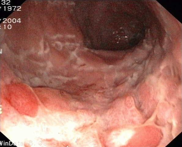 Endoskopiebild Iliitis terminalis