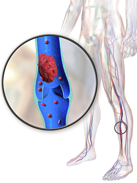 Illustration depicting a deep vein thrombosis