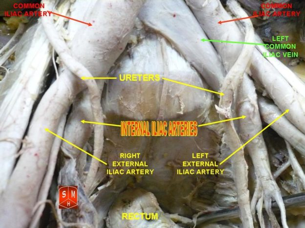 internal iliac arteries